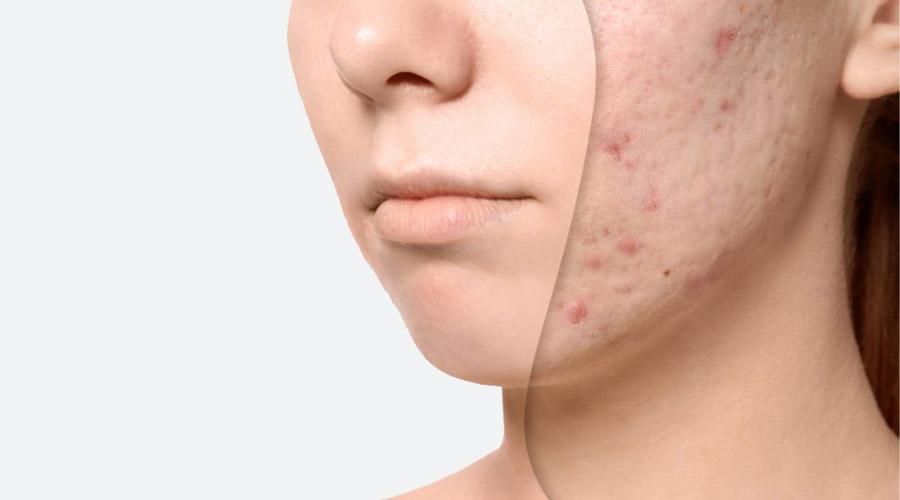 Acné et massage facial