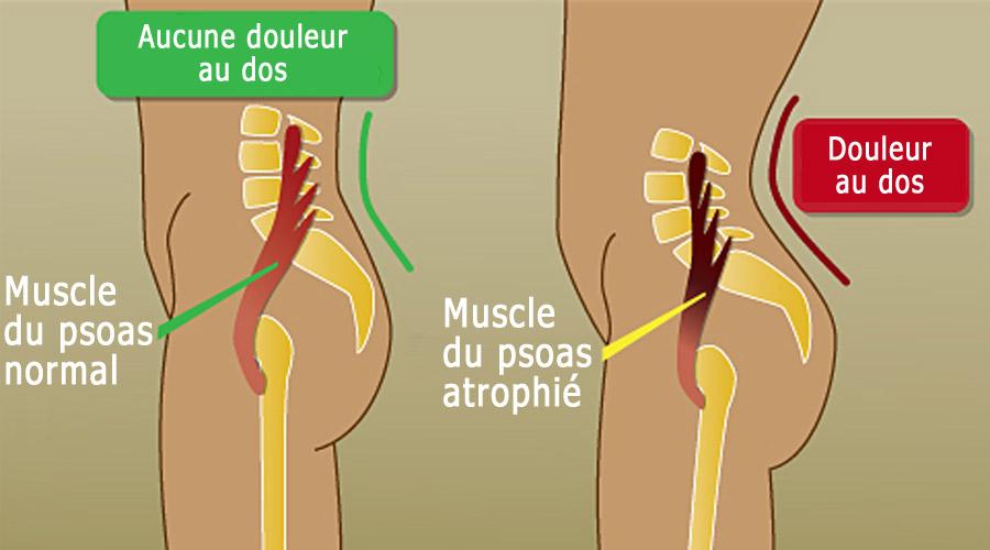 Muscle atrophié